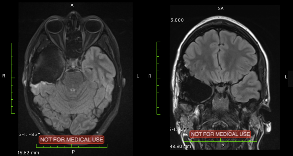 MRI Scans showing Chantal's brain following surgery and recovery, the right temporal lobe is largely missing.